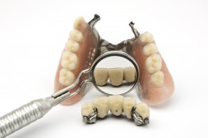 broken-denture-repair