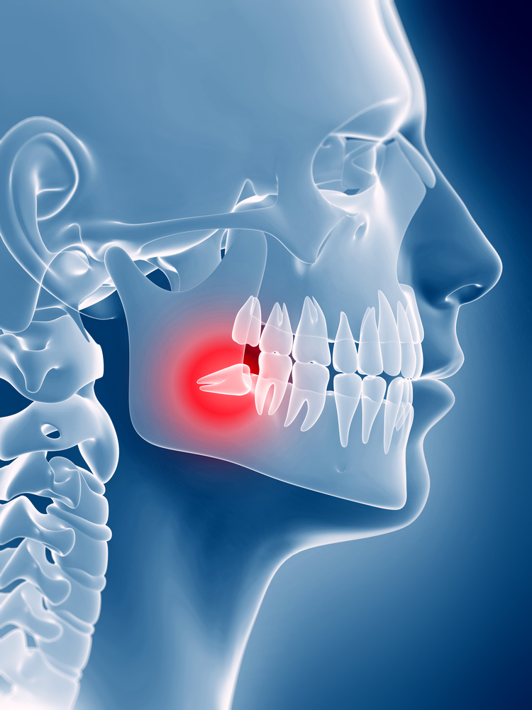 hurt teeth do your jaw wisdom
