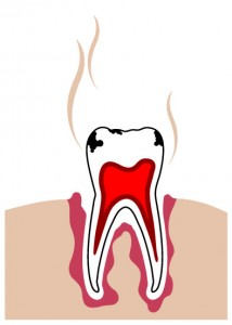 are-cavities-contagious-roseville-dentist