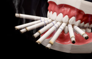 tobacco-and-how-it-affects-your-teeth-roseville-dentist