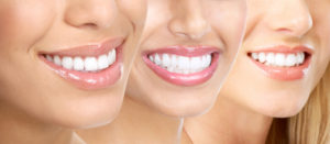 natural-teeth-whitening-roseville-dentist