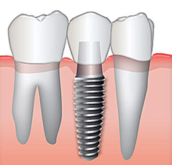 tooth-replacement-options-roseville
